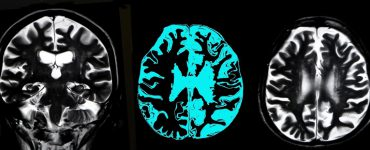 An MRI scan